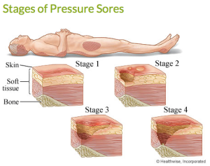 stages of bedsores